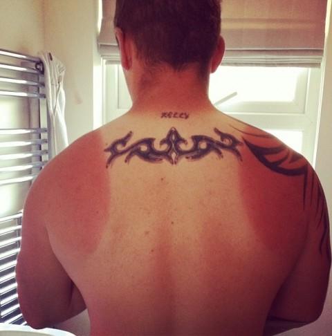 sun burn tan lines3